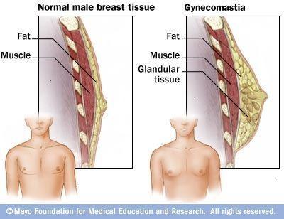 Die plastische Operation nach der Erhöhung der Brust ohne Operationen